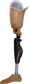 Above Knee Prosthetis with Microprocessor knee
